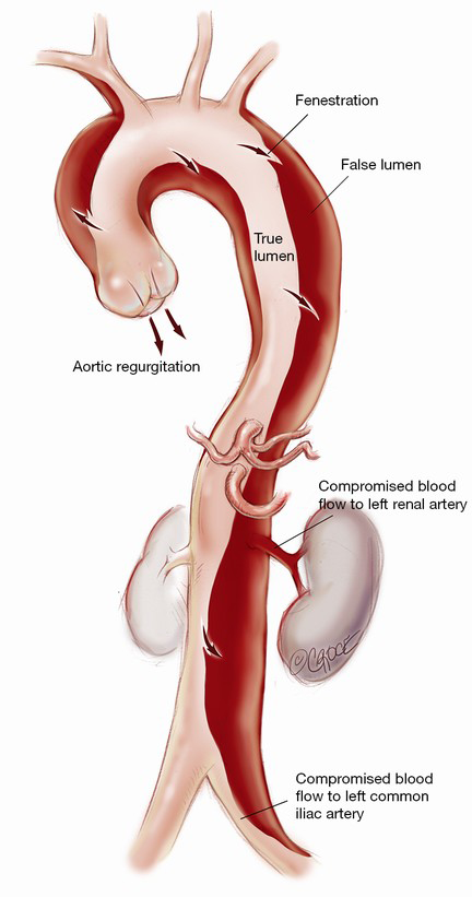 Surgical management of acute type A aortic dissection: branch-first ...