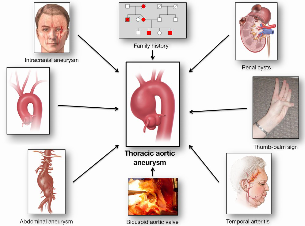 Guilt by association: a paradigm for detection of silent aortic ...