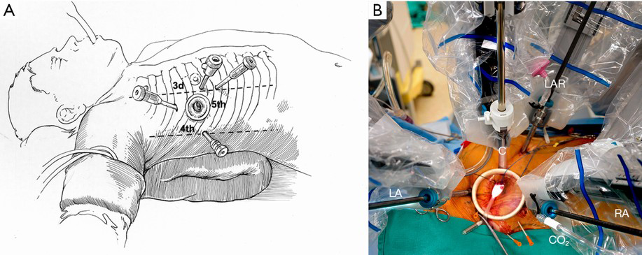 Robotic mitral valve surgery: overview, methodology, results, and