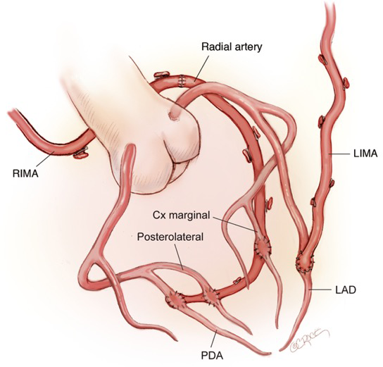 dual inflow total arterial anaortic off pump coronary artery