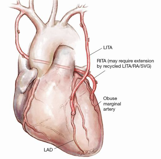 How I Deploy Arterial Grafts Taggart Annals Of Cardiothoracic Surgery