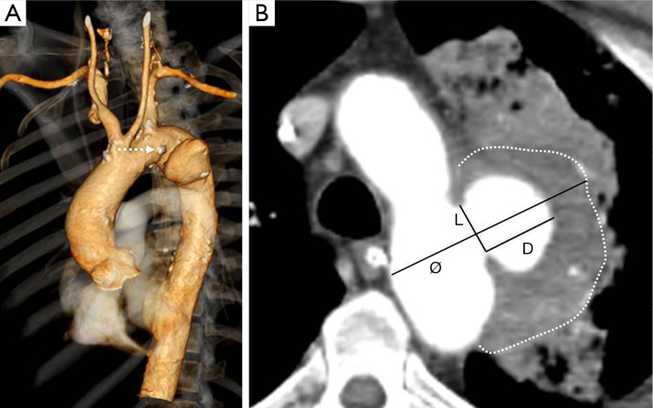 Arch and access vessel complications in penetrating aortic ulcer