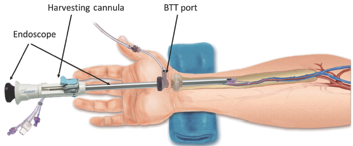 harvesting the radial artery - blitz- annals of cardiothoracic surgery, Cephalic Vein