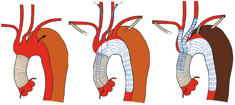 branches of ascending aorta