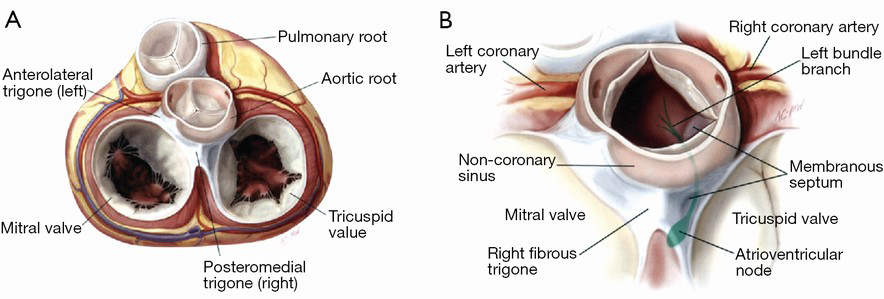 Special considerations in mitral valve repair during aortic root ...