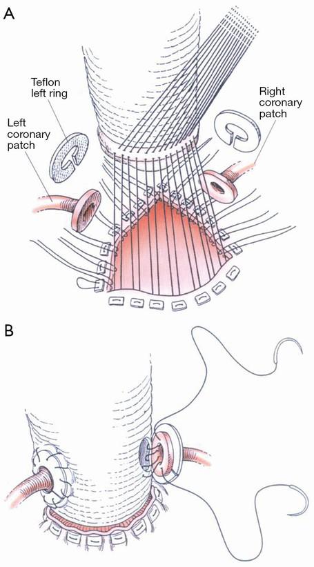 Advances in Parasitology, Vol.