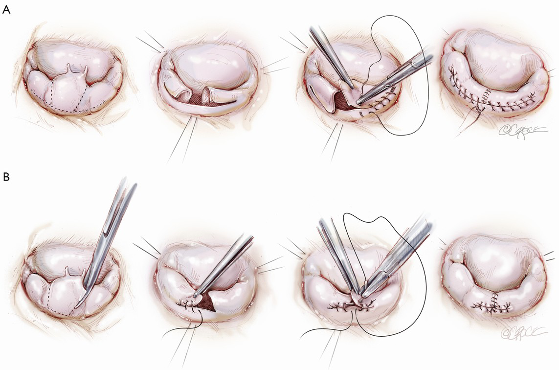 Evolution Of The Concept And Practice Of Mitral Valve Repair Cohn