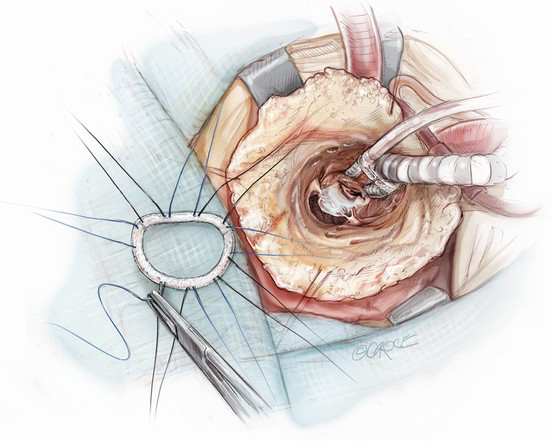 chest guidelines mitral valve repair